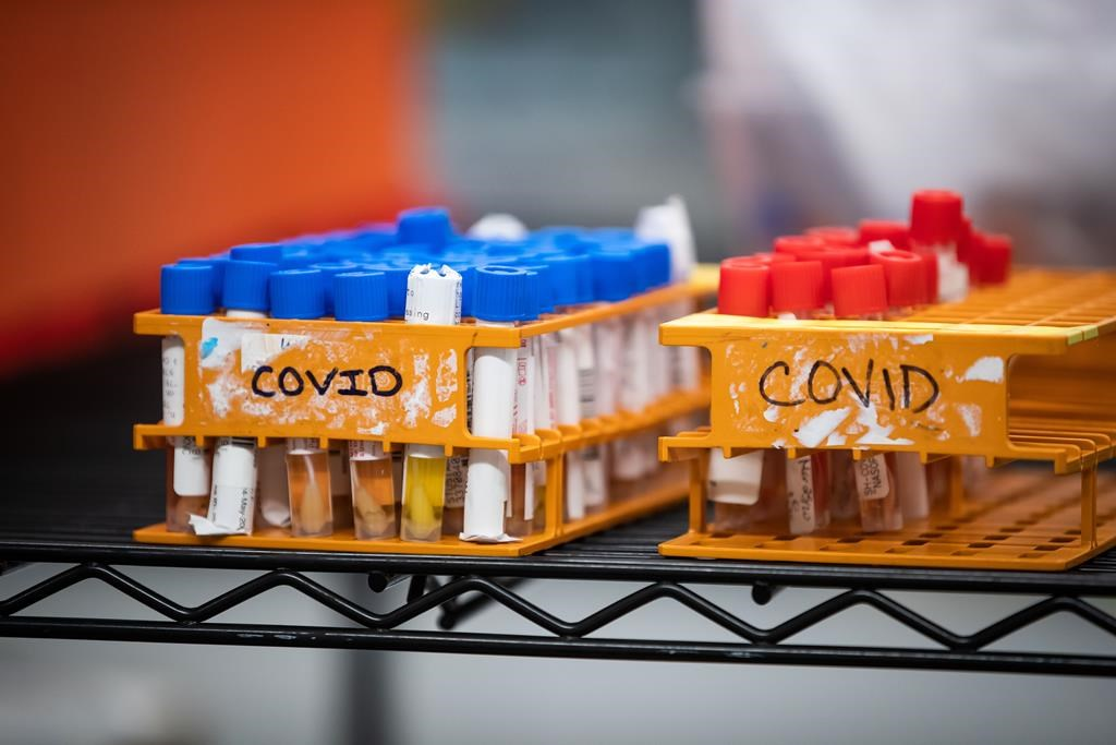 COVID 19 activity declining, but variants at 'critical juncture,' Tam says